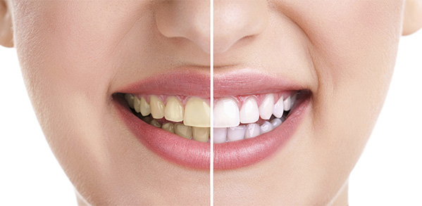 Stained vs clean teeth